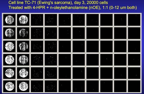 DIMSCAN是用于在组织培养板中定量测定相对细胞数半自动数字图像显微系统,DIMSCAN是一种快速和有效的工具。 用DIMSCAN测定系统测定细胞毒性,此系统使用数字成像显微镜测定6至384孔培养板每孔中计数活细胞的个数,活细胞选择性地积聚荧光黄二醋酸盐变成亮色的荧光。此系统能通过用曙红Y淬灭已死亡或濒临死亡的细胞的残存荧光,并用数字阈测定活细胞的总荧光,而在4-5个数量级动态范围内4到7天测定细胞毒性。所测定的荧光与活细胞数量成正比。将经药物治疗的细胞群体的总荧光和相似数量的未经治疗的细胞的荧光对比,